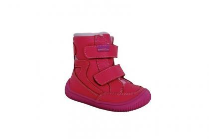 protetika-obuv-zimni-sue-vel_13053_11107.jpg